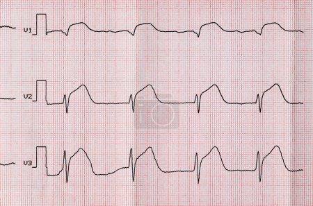 Emergency Cardiology. ECG with acute period macrof...