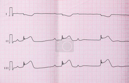 ECG with acute period of macrofocal myocardial infarction, AV block II degree type Mobitts I