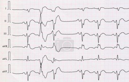 ECG with macrofocal  myocardial infarction and pair ventricular premature beats