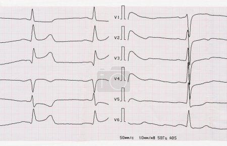Emergency Cardiology. ECG with acute period of mac...