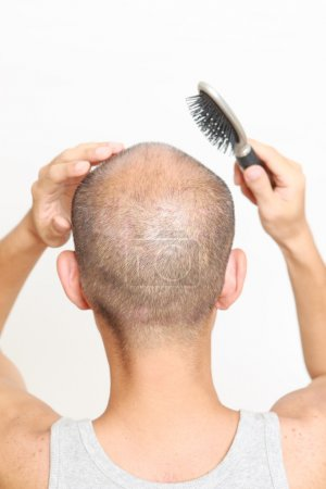 Brushing thin hair