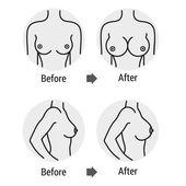 breast surgery 1