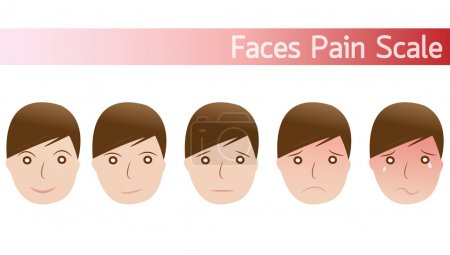 Faces pain rating scale
