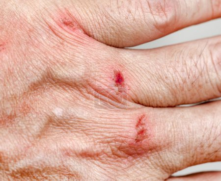hand injury, abrasion