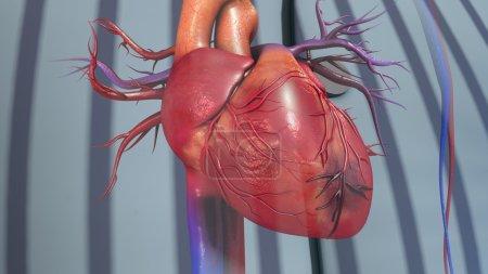 Photo pour Cardiaque, infarctus du myocarde. illustration 3D - image libre de droit