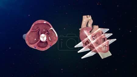 human heart echocardiogram