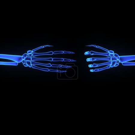 Wrist joint