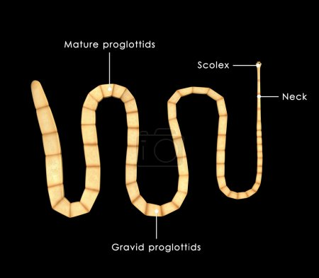 Taenia solium, pork tapeworm