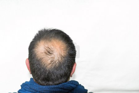 yang man with balding.