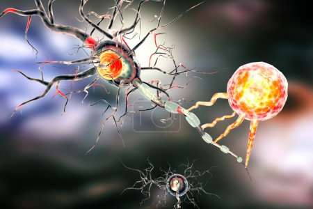 Photo for 3d illustration of nerve cells, concept for Neurological Diseases, tumors and brain surgery - Royalty Free Image