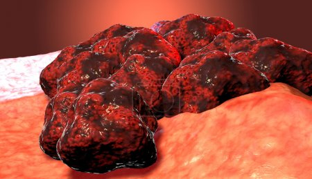 Cancer cell tumor, 3d medical illustration