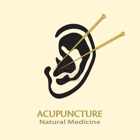 Illustration for Human Ear with Acupuncture Needles vector icon. Medical procedure illustration. Business sign template for Acupuncture, Chinese Traditional or Alternative Medicine, Natural Healing and Recreation. - Royalty Free Image
