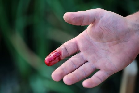 Photo pour Closeup view of index finger on right human hand turned with palm is cut hurt and bleeding with bright red blood outdoor sunny day on blured green background, horizontal picture - image libre de droit