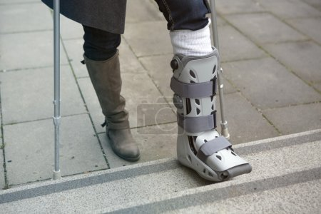 closeup of woman walking with cast on foot