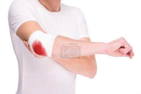 Photo pour Main rapprochée de l'homme, coude douloureux blessé avec bandage sanglant blanc . - image libre de droit