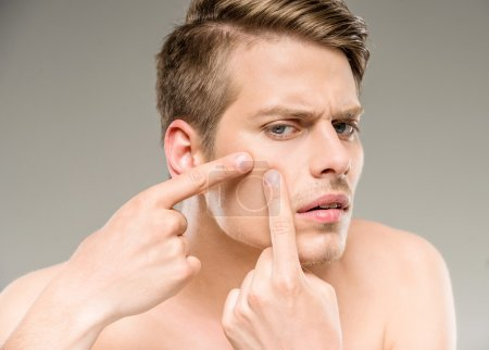 Photo for Handsome man touching his face. Squeezing pimple. - Royalty Free Image