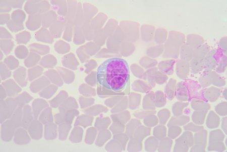 Lymphocyte