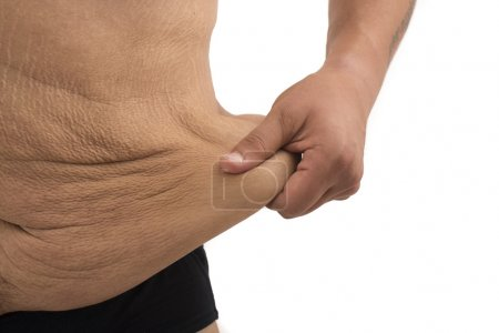 Man with fat belly and stretch marks