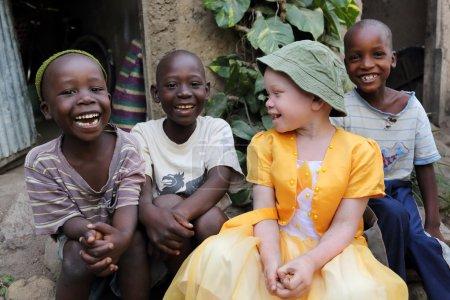 Albino child and boys in Ukerewe, Tanzania