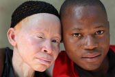 Albino mother and son in Ukerewe,