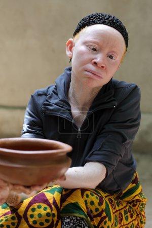 Albino woman in Ukerewe, Tanzania