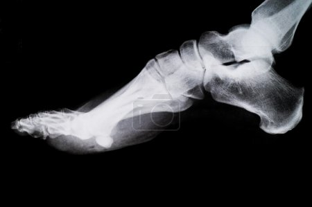 X Ray of the Foot.