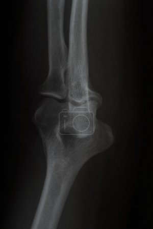 X ray picture of Elbow