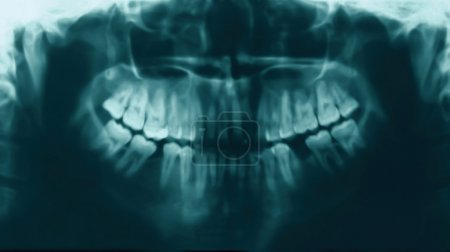 X-ray image of teeth people, stomatology concept