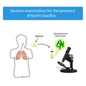 Sputum examination World Tuberculosis Day Infographics Vector illustration on isolated background