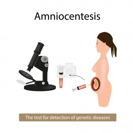 Amniocentesis. Analysis of amniotic fluid. Pregnant woman. Genetic diseases. Vector illustration on isolated background