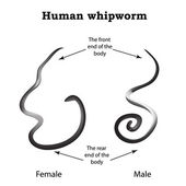 Whipworm Structure whipworm females The structure of the male whipworm Infographics Vector illustration on isolated background