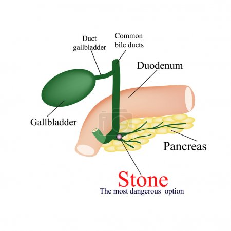 Stone pancreatic bile duct. The most dangerous rock. The gall bladder, duodenum, bile ducts. Vector illustration on isolated background