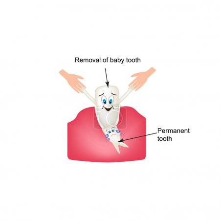 Removing baby teeth. Childrens cartoon style. Infographics. Vector illustration on isolated background