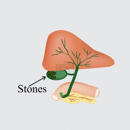 The stones in the gallbladder. Duodenum, pancreas, bile ducts. Vector illustration on a gray background