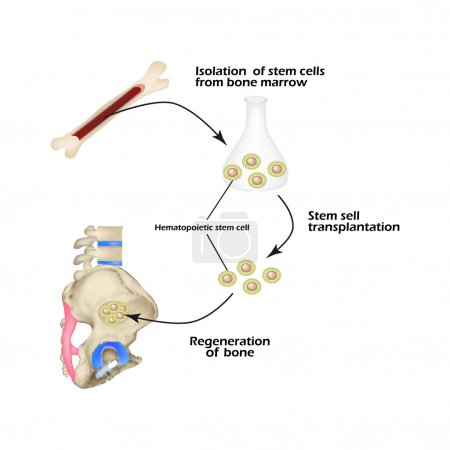 Stem cells from bone marrow are used for bone regeneration. Infographics. Vector illustration