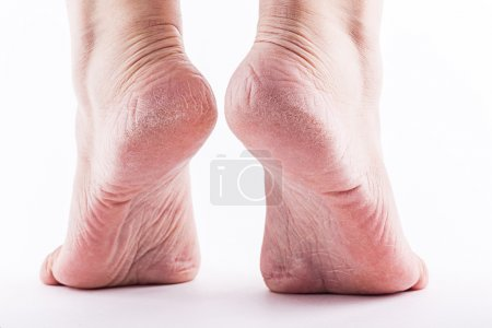 Photo pour Peau déshydratée sur les talons des pieds féminins - image libre de droit