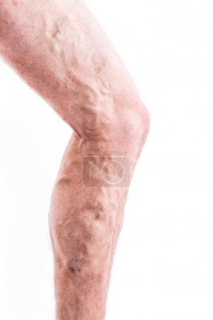 People with varicose veins of the lower extremities and venous t