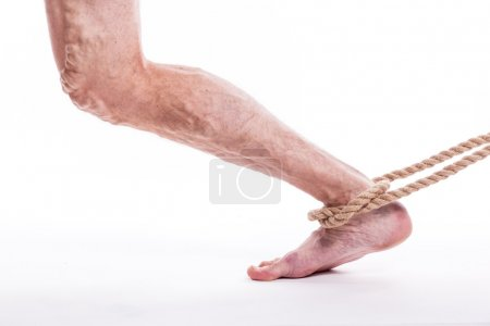 rope holding human leg ailing varicose veins of the lower extrem