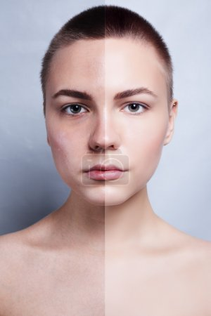 Before and after cosmetic operation. Young pretty woman portrait
