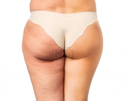 Cellulite problem concept, before and after