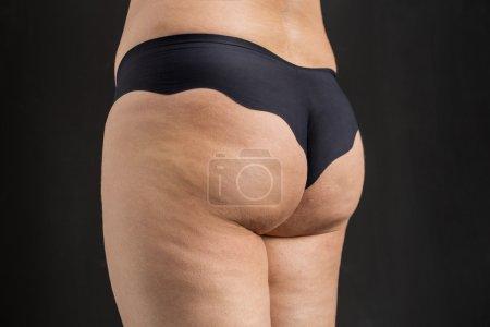 Cellulite problem