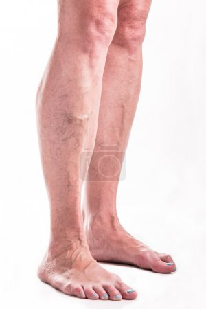 Varicose Veins on the legs of woman