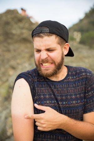 Man suffering a sun burn in the arm