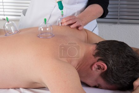 Photo for Medical Hijama cupping therapy on human body - Royalty Free Image