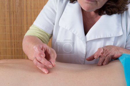 Acupuncturist in action with a man