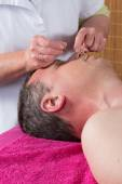 Detail akupunkturista umístí jehlu