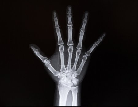 X-ray of wrist of the arms. Medicine