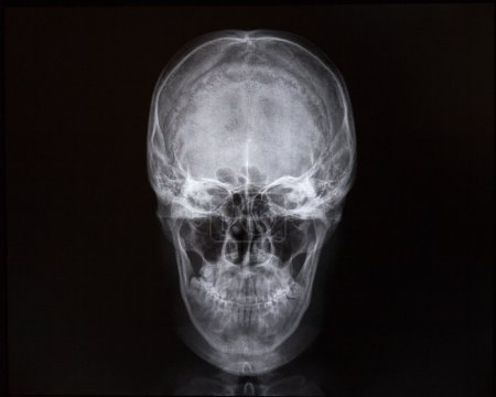X-rays of skull and internal cavity. Medicine