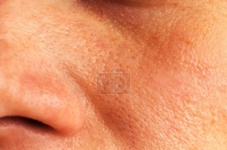 Oily skin and pores on the face of the woman...