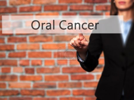 Oral Cancer - Businesswoman hand pressing button on touch screen